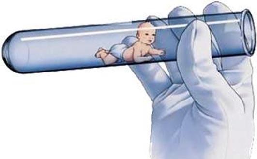 Tüp Bebek İle İlgili En Çok sorulanlar
